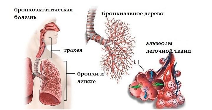 Случай из практики: бронхоэктатическая болезнь