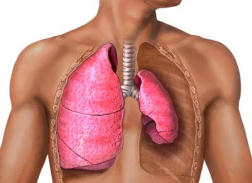 Случай из практики: Спонтанный пневмоторакс