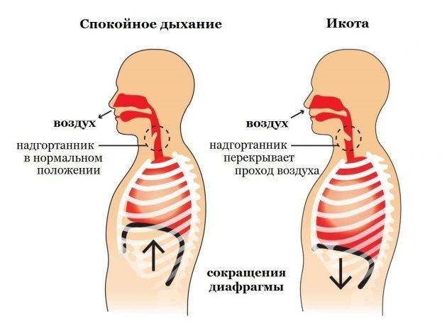 Икота-икота: О каких заболеваниях расскажет икота?