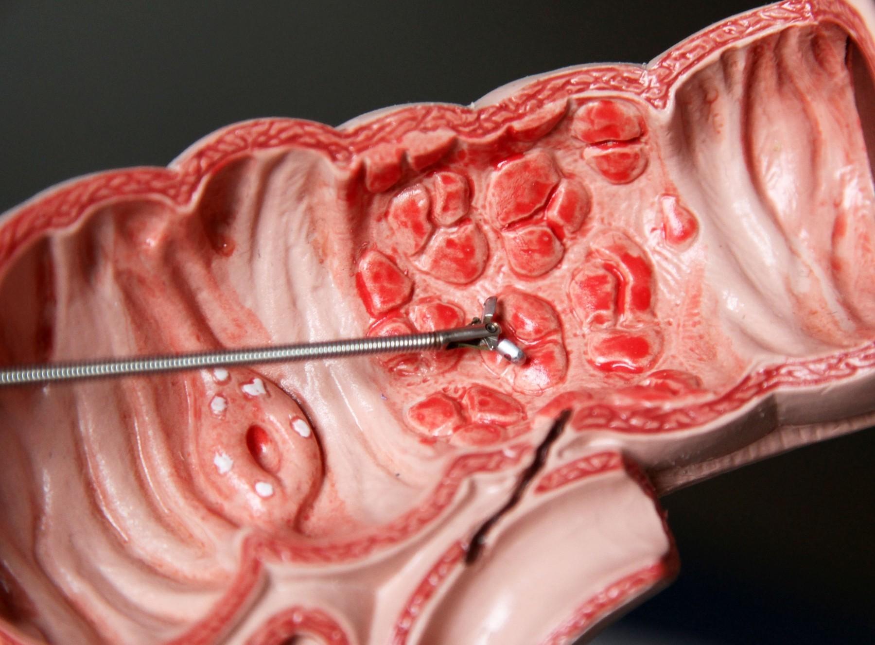 Осложнения язвенной болезни желудка и 12-перстной кишки