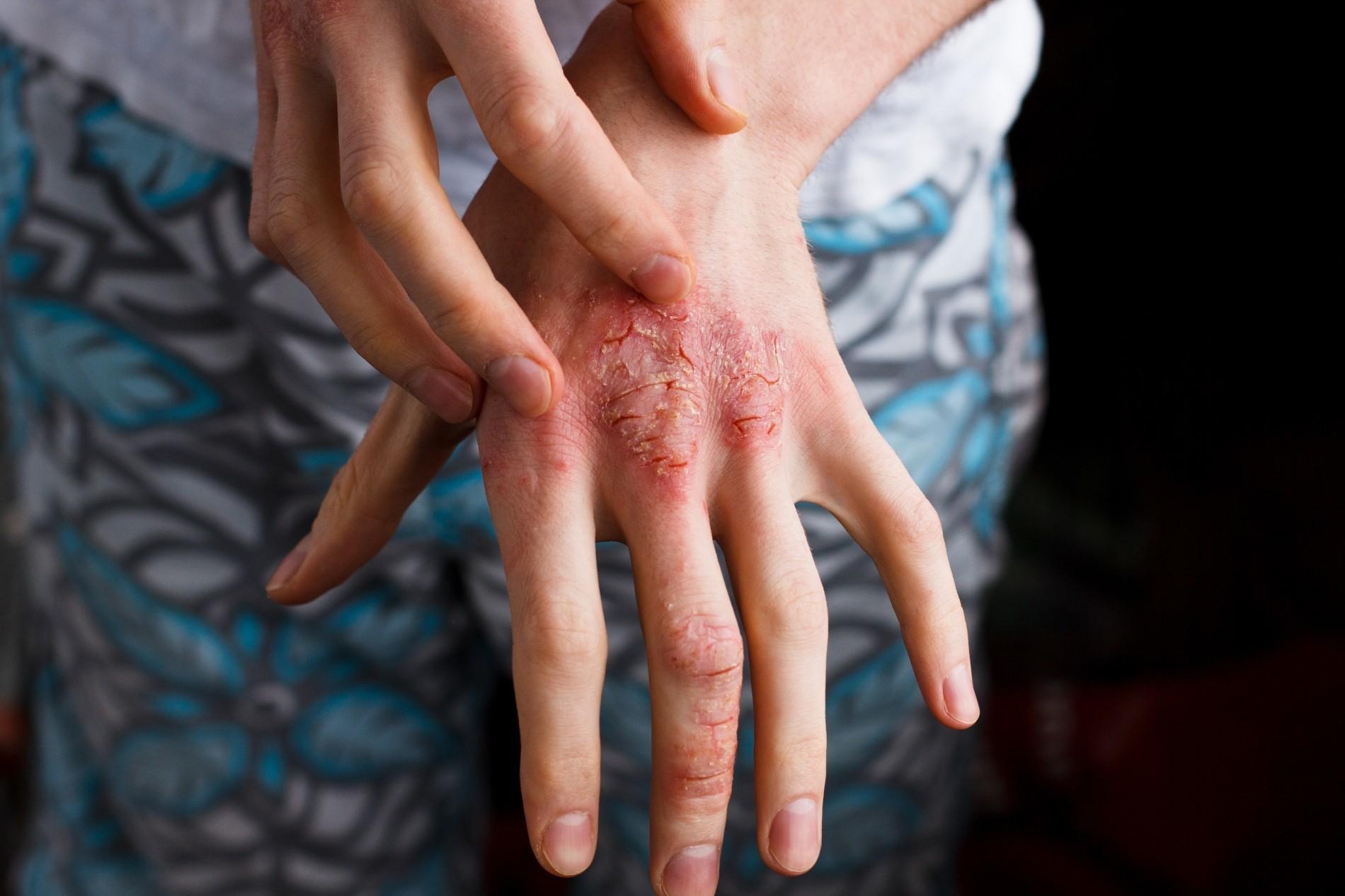 Псориаз: болезнь патрициев и плебеев